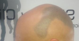 Alopecia_Areata