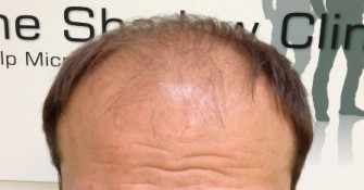 Male_Pattern_Baldness1