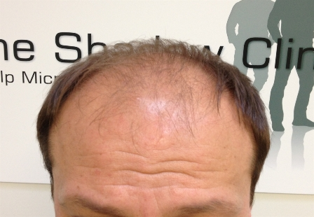 Male_Pattern_Baldness1